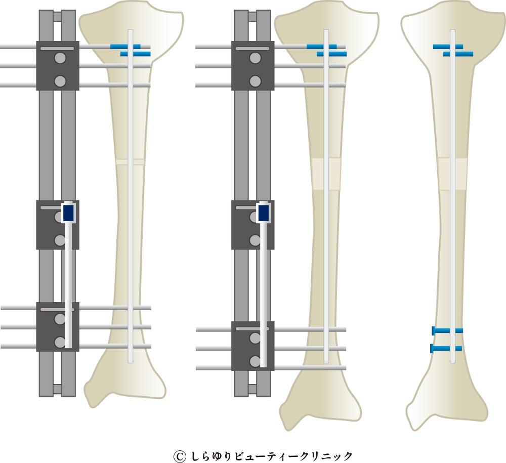 デバスチアーニ変法 脚延長(骨延長)手術〜しらゆりビューティークリニック
