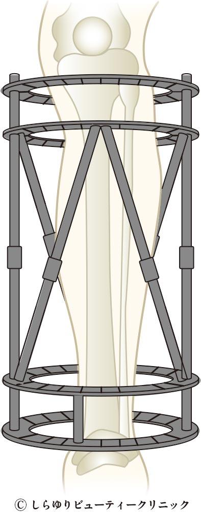 テイラー スペーシャル フレーム法 脚延長(骨延長)手術〜しらゆりビューティークリニック