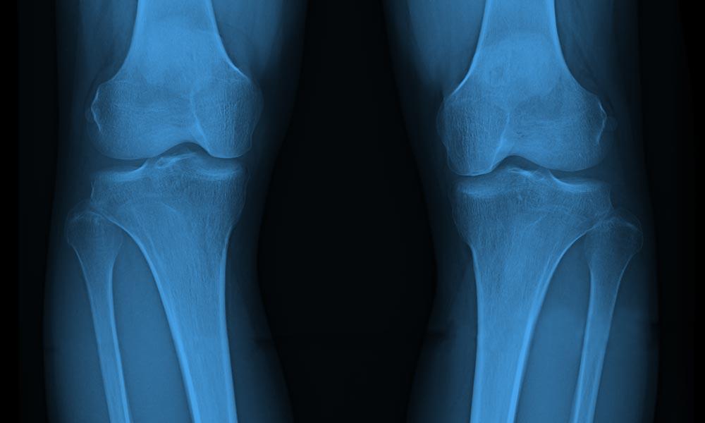 O脚X脚治療 しらゆりビューティークリニック