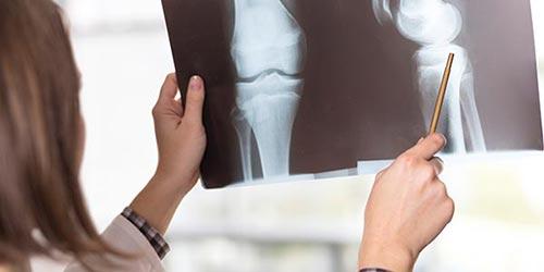 しらゆりビューティークリニック脚延長(骨延長)手術 症例写真