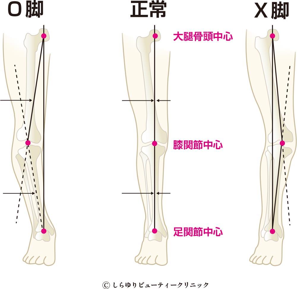 O脚X脚治療〜しらゆりビューティークリニック